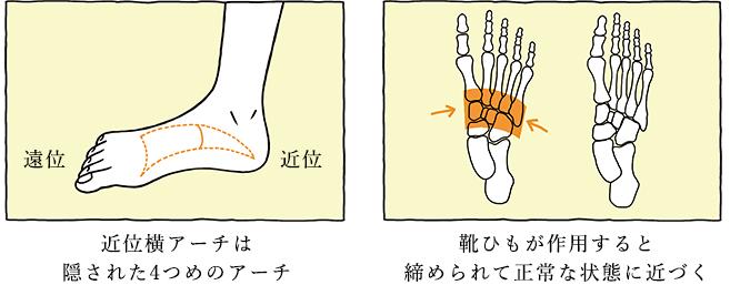 近位横アーチは隠された4つめのアーチ 靴ひもが作用すると締められて正常な状態に近づく