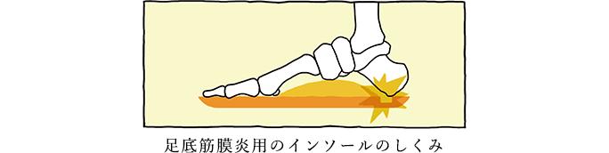 足底筋膜炎用のインソールのしくみ