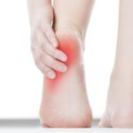 足底筋膜炎 予防とケア