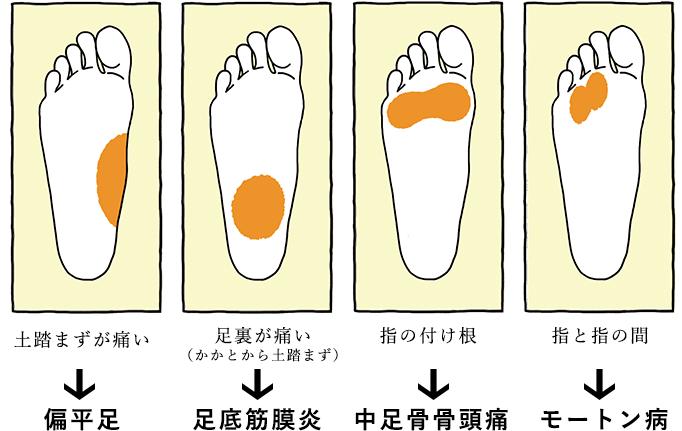 痛い箇所の図:偏平足、足底筋膜炎、中足骨骨頭痛、モートン病