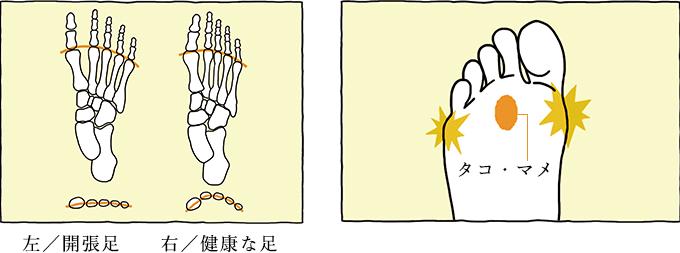 左:開張足 右:健康な足
