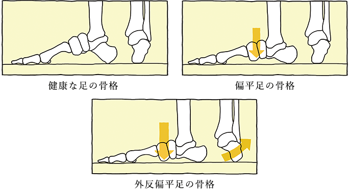 偏平足の骨格 外反扁平足の骨格