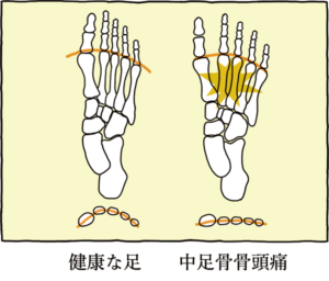 健康な足との違い