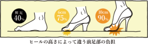 ヒールの高さによって違う前足部の負担