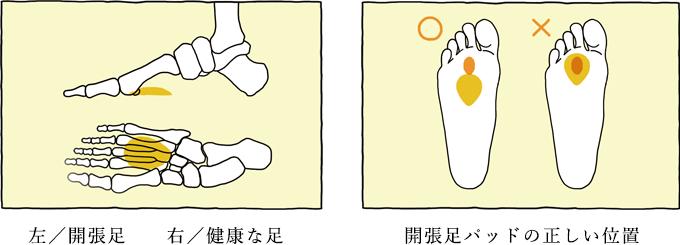左:開張足 右:健康な足 開張足パッドの正しい位置