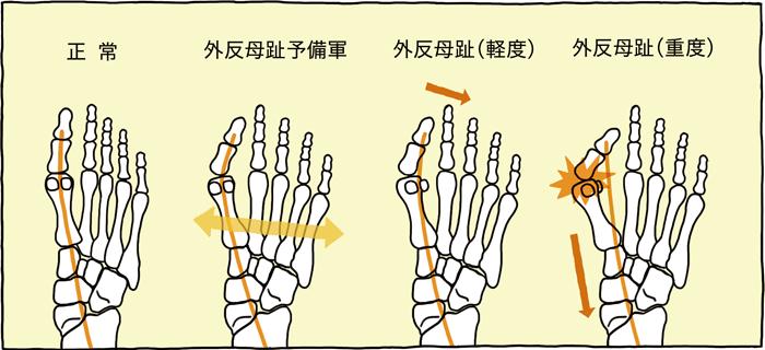 正常・外反母趾予備軍・外反母趾(軽度)・外反母趾(重度)