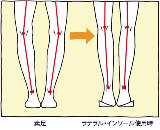 素足とラテラル・インソール使用時