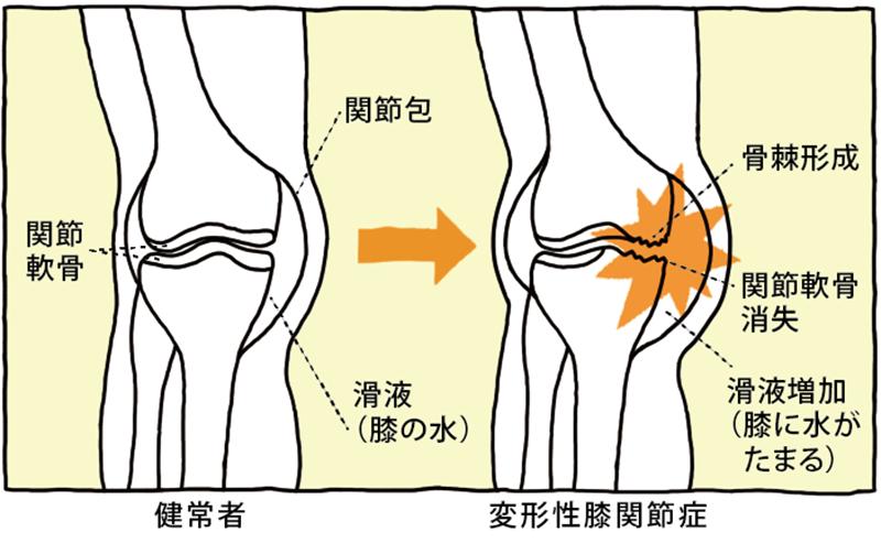 健常者と変形性膝関節症