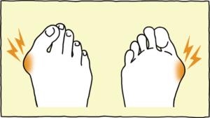 の 痛い 足 側面 が