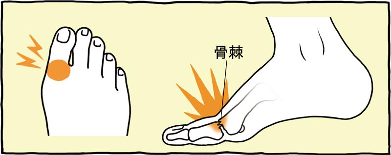足 の 指 が 痛い
