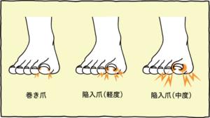 巻き爪・陥入爪(軽度)・陥入爪(重度)
