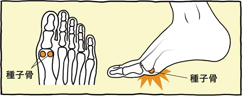 曲げると痛い 足の親指の付け根
