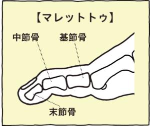 中節骨・基節骨・末節骨