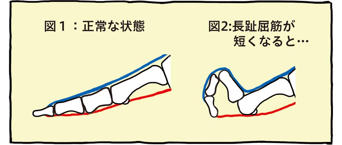図1:正常な状態 図2:長趾屈筋が短くなると…