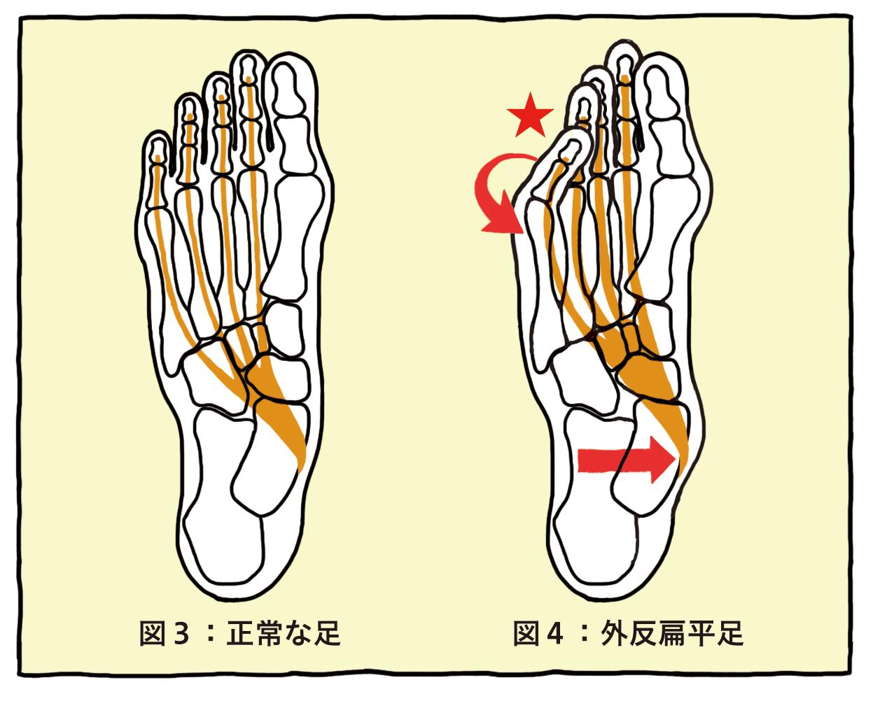 図3:正常な足 図4:外反扁平足