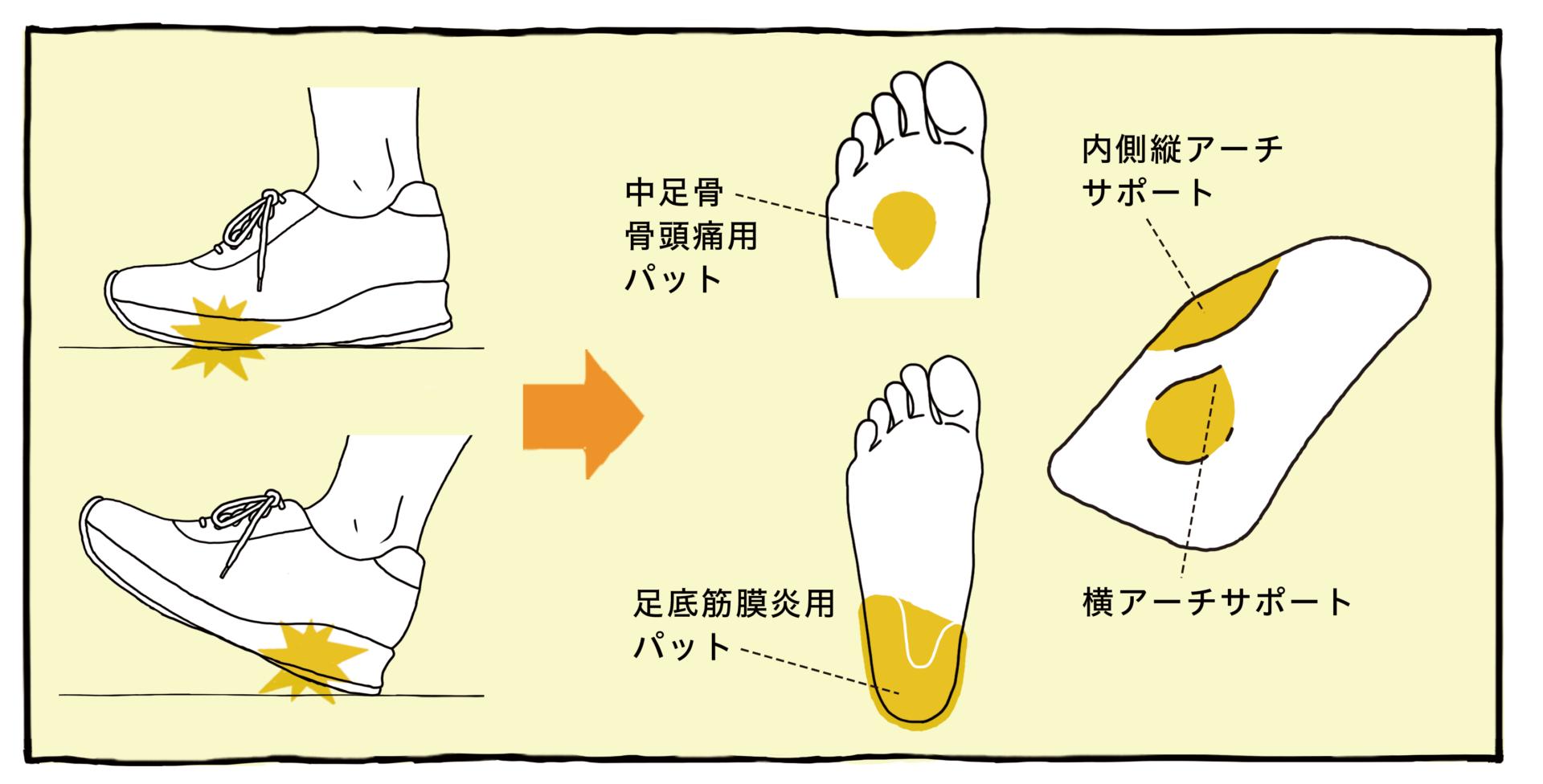 中足骨骨頭痛用パット 足底筋膜炎用パット