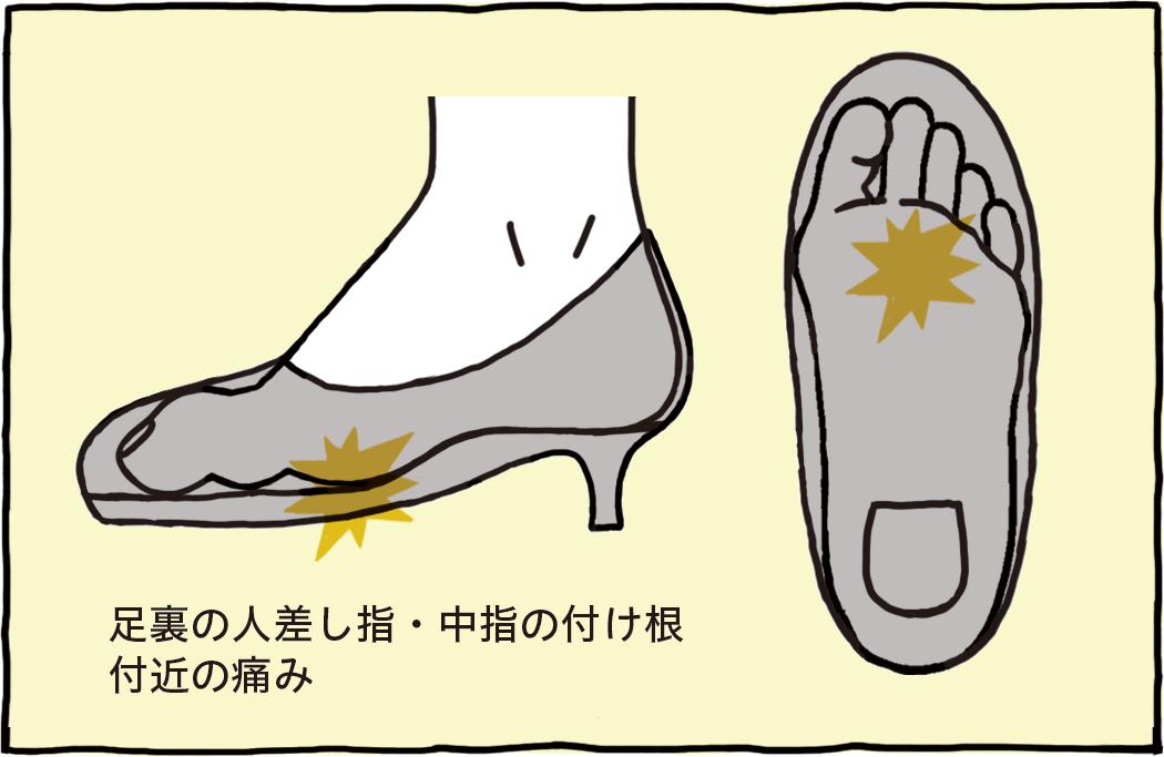 足裏の人差し指・中指の付け根付近の痛み