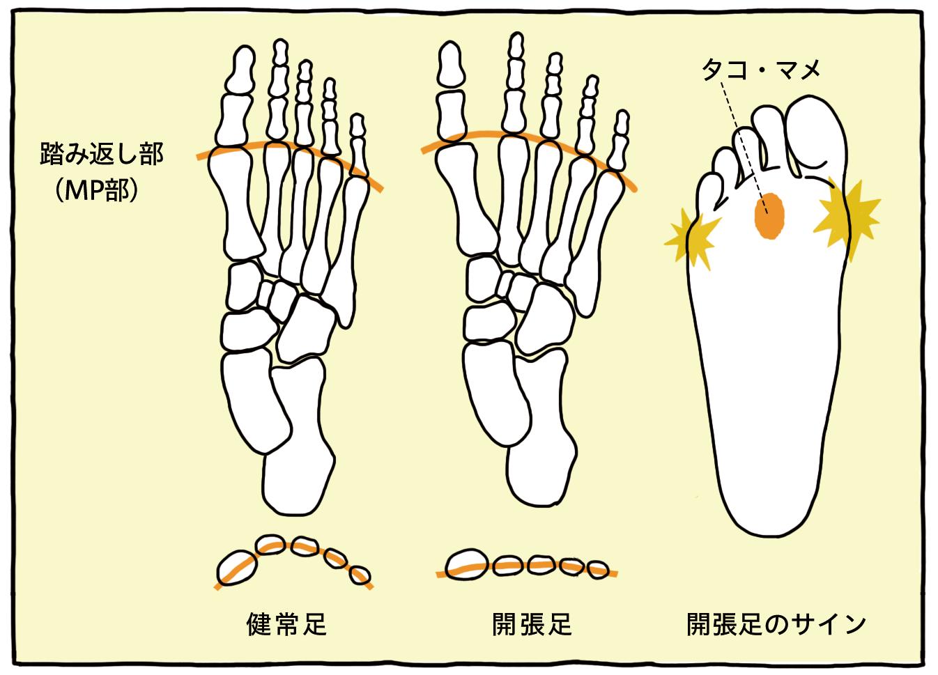 健常足と開張足の踏み返し部