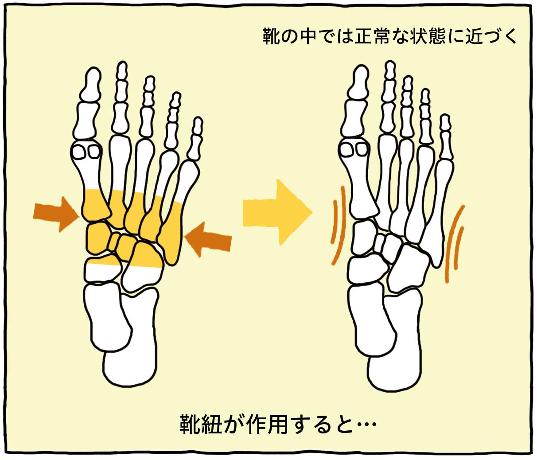 靴紐が作用すると→靴の中では正常な状態に近づく