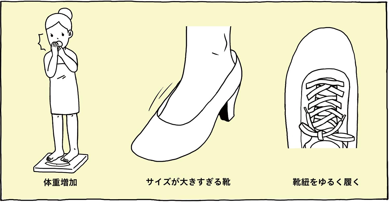 体重増加・サイズが大きすぎる靴・靴紐をゆるく履く