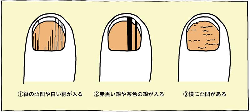 爪の模様の図
