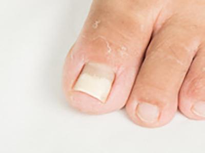 足の爪のお悩み 足のお悩み百科