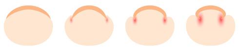巻き爪の図