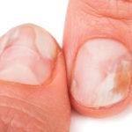 足の爪のお悩み